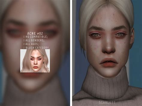 Acne #02 - The Sims 4 Download - SimsDomination
